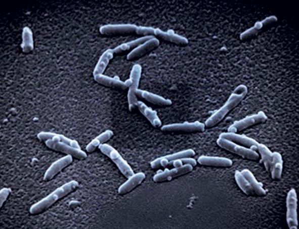 Legionella pneumophila je parazit, který vniká do lidských buněk a způsobuje tzv. legionářskou nemoc. Ta má podobný průběh jako zápal plic. Pro lidi s oslabenou imunitou představuje životu nebezpečné onemocnění.